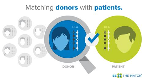 Matching For And - how donors and patients are matched