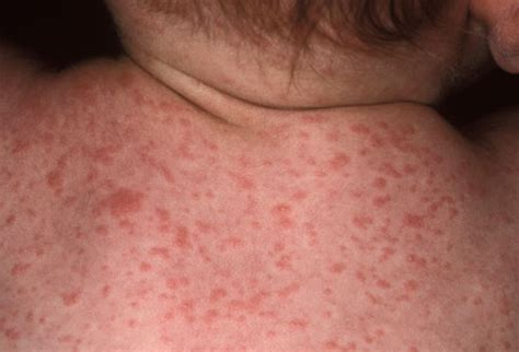 medical pictures info – lamictal rash