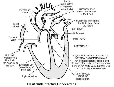 heart cross section diagram 17 best images about my fighting father endocarditis on