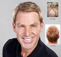 shane warne hair shane warne questions evolution