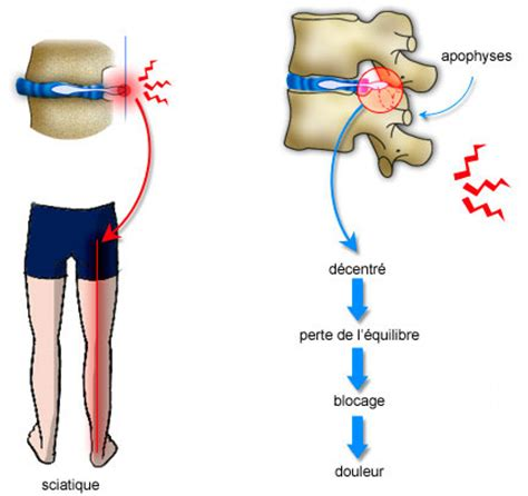 anomalies anatomiques : protrusion discale et hernie discale