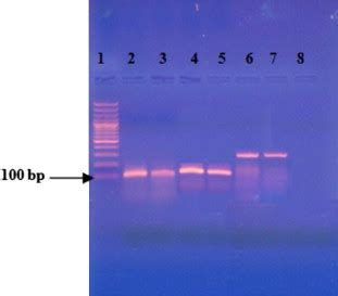 agarose gel electrophoresis for whole blood seminested pcr