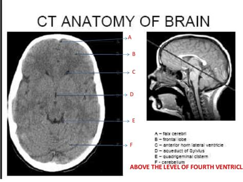 sectional anatomy by mri and ct cross sectional anatomy ct and mri anatomie des gehirns