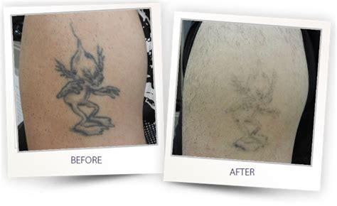 tattoo removal qatar alma q alma lasers