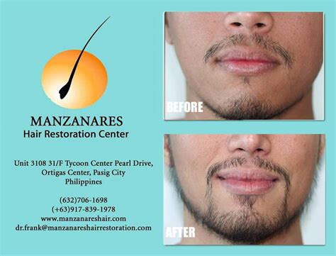 hair transplant in the philppines cost before and after photos hair transplant manila