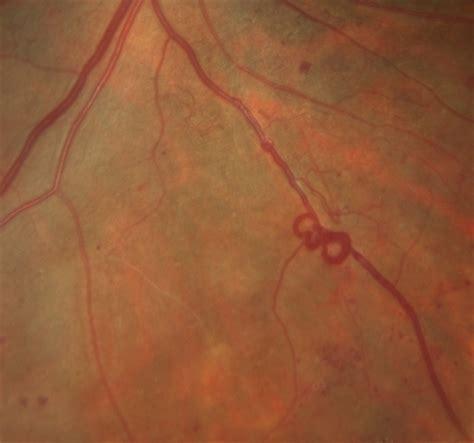 venous beading venous loop in severe nonproliferative diabetic