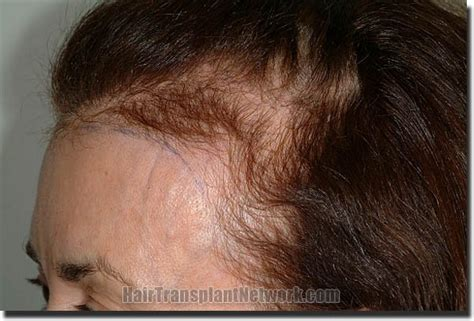 female balding at temples hairstyles thinning hair in temple area uso dei peli della barba e