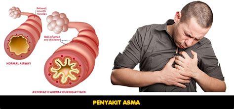 Obat Alami Penyakit Asma obat asma alami uh menyembuhkan asma secara alami