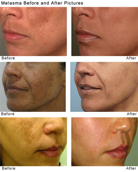 spectra laser toning for treating melasma beautyworks