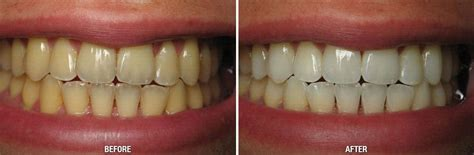 zoom whitening loza dental great falls great falls va