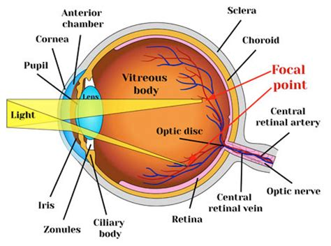 what is astigmatism and can it be fixed lasikplus