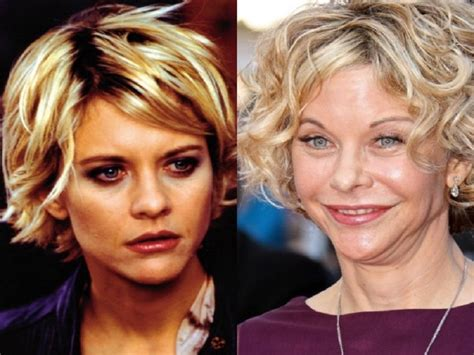 when did meg ryan have a face lift plastic surgery would you