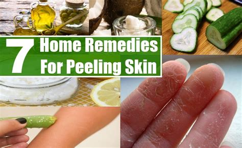 7 effective home remedies for peeling skin diy health remedy