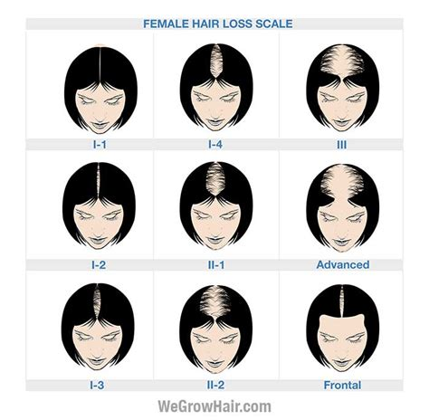 female pattern hair loss scale ludwig scale female hair loss