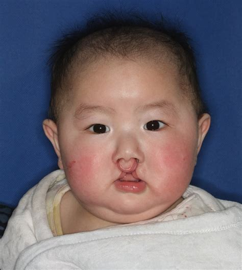 s new smile a baby with cleft lip and palate books beyond a single surgery the power of comprehensive cleft