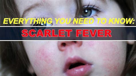 Had A High Fever Traveled With A by Urgent Alert For Parents To Look Out For Scarlet Fever In