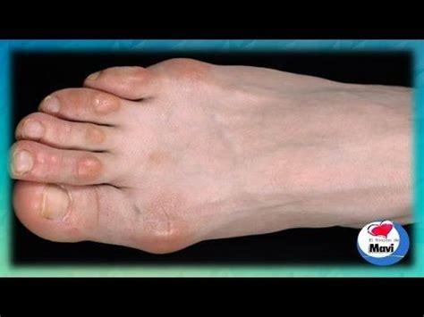 como decorarte las uñas delos pies como quitar los callos de los dedos de los pies callos