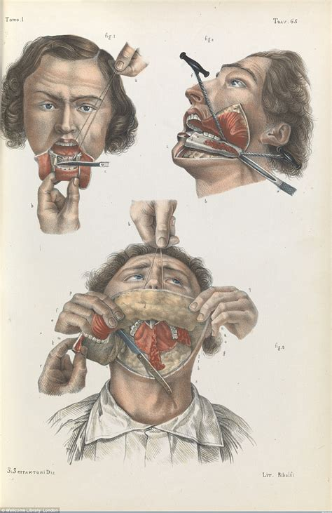more ether less chloroform classic reprint books wellcome collection s images show the barbaric nature of