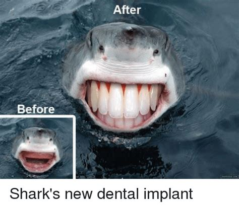 Meme Implants - before after shark s new dental implant shark meme on sizzle