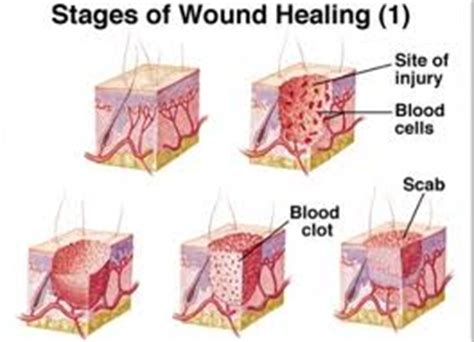 scabs heal all wounds true story of a replacement player books our healing process article on coping with