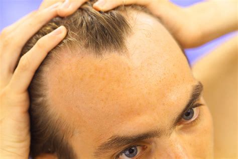 Types Of Hair Treatments by Types Of Hair Loss Treatment Regrow Hair Protocol