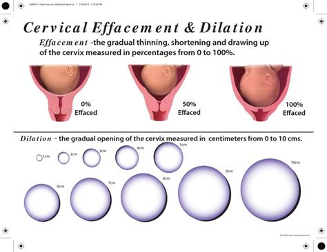 cervix diagram during pregnancy cervical effacement and dilation chart search
