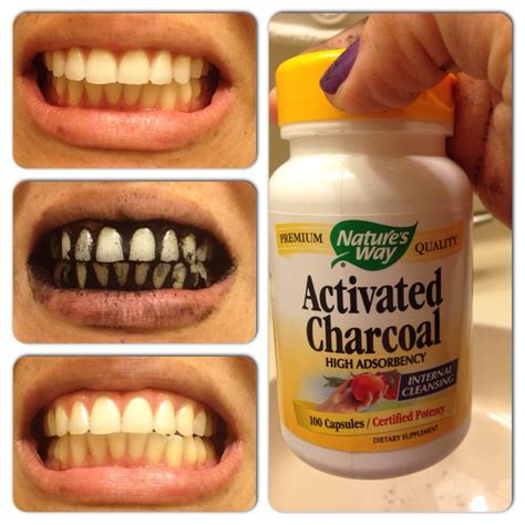 E Senses Whitening i just did the craziest thing teeth whitening with active