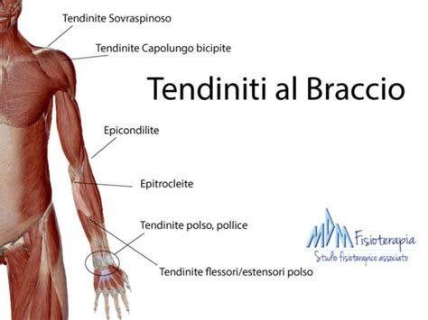 tendinite gomito interno tendiniti braccio segui la guida completa mdm fisioterapia