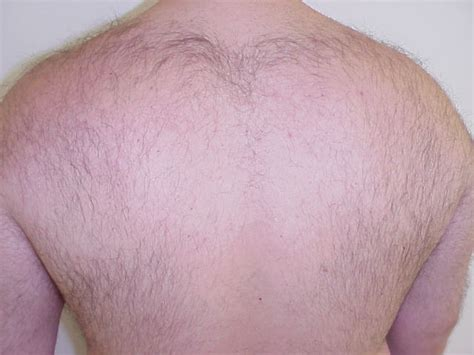 hair removal pics laser hair removal picture