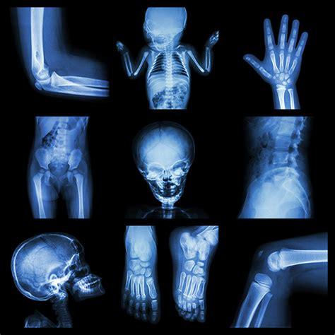 imagenes medicas c por a la radioprotecci 243 n en pediatr 237 a m 225 s que un aspecto te 243 rico