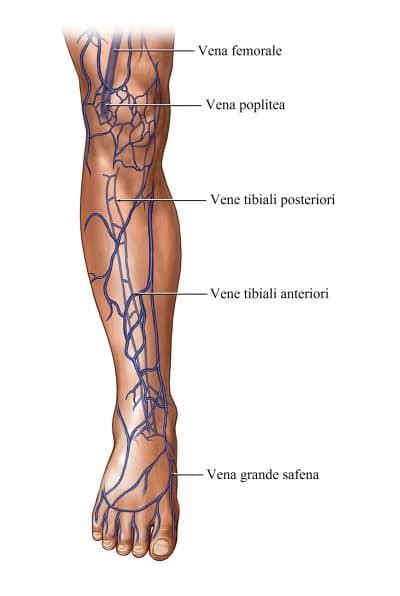 rottura vasi capillari rottura dei capillari sulle gambe cause e rimedi naturali