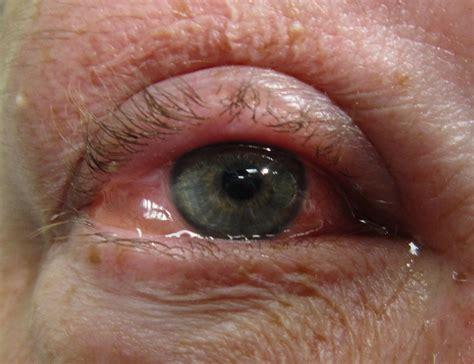 eye allergies allergic conjunctivitis