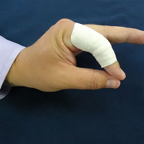 Casing Custom Finger physical occupational therapy in erie pa the