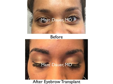 eyebrow shaping on african americans african american eyebrows eyebrow transplant in female