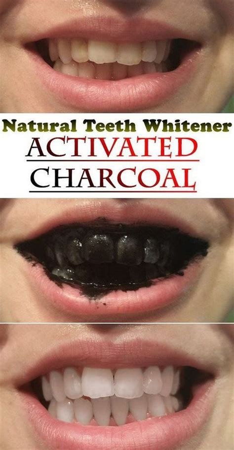 Lamour Acne Drop by 25 Best Ideas About Charcoal For Teeth Whitening On