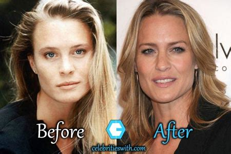robin wright penn neck surgery robin wright plastic surgery before and after robin wright