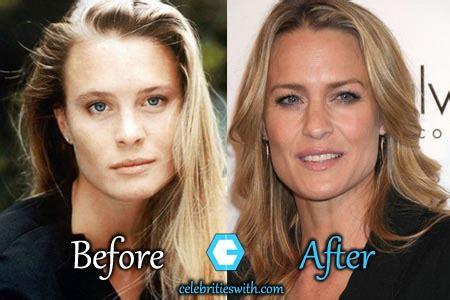 robin wright penn neck surgery robin wright neck surgery plastic surgery botox before