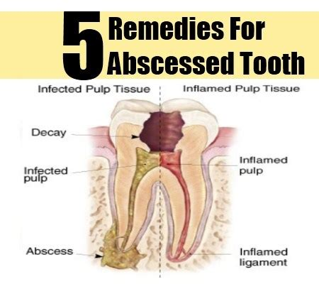 5 abscessed tooth herbal remedies treatments and