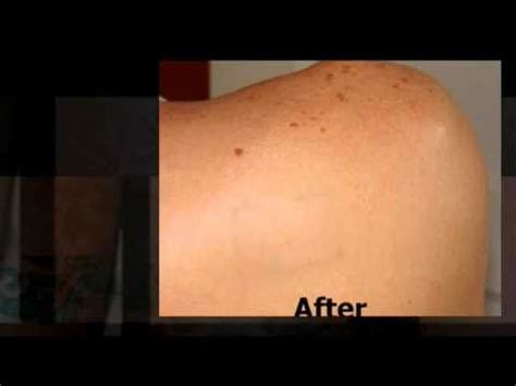 bleaching cream for tattoo removal removal how to make do everything