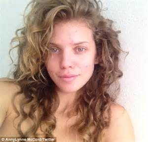 annalynne mccord shows off her spotty complexion as she