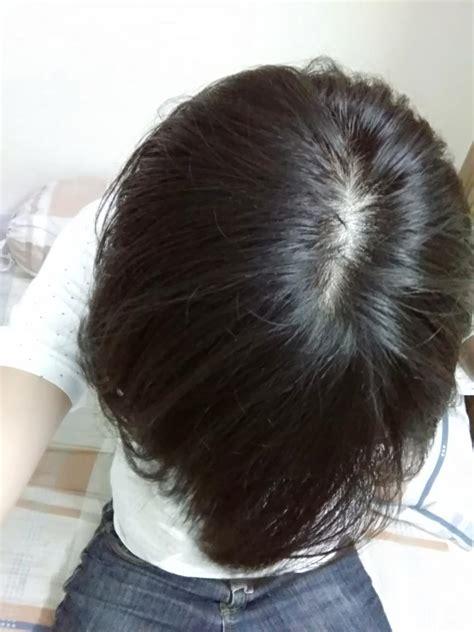 natural hair thin crown whorl hair loss the best hair of 2018