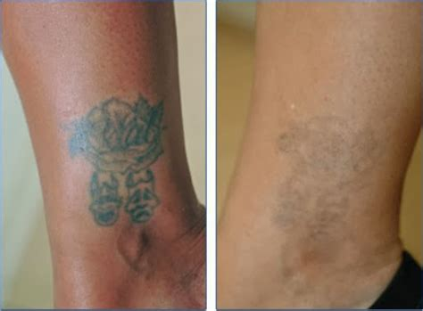 tattoo removal with salt before and after removal how to remove tattoos at home