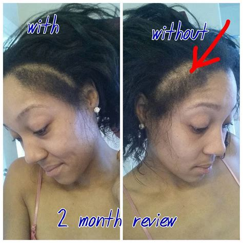 wild growth hair oil before and after october 16