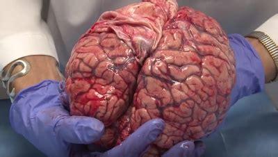 imagenes de el cerebro humano cerebro real www pixshark com images galleries with a