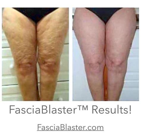 Fascia Blasting Detox by 156 Best Fascia Images On Black