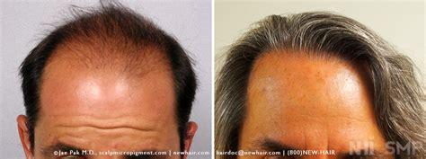 hair cloning 2015 most recent news hair cloning 2015 newhairstylesformen2014 com