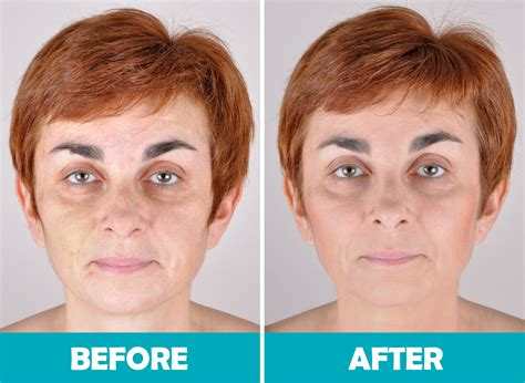 before and after rejuvenation cosmetic acupuncture club toronto