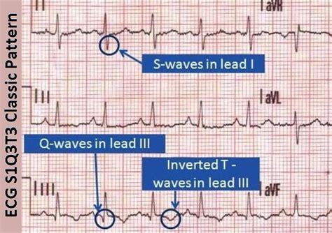 pattern rights meaning s1q3t3 pulmonary embolism ecg ekg classic pattern