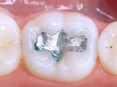 piombatura denti tutte le otturazioni sono effettuate in materiali bianchi