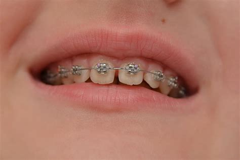 How To Make Braces With Paper - are doing diy braces on and the results are